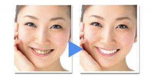 歯の黄ばみは加齢のサイン!
