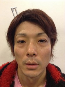切らない眼瞼下垂手術 Double Eyelid Surgery + Blepharoplasty (no incision)
