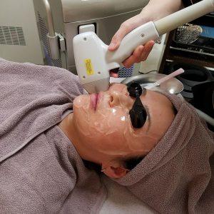 顔の脱毛 laser hair removal for face