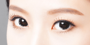 眼瞼下垂術(切開あり)
