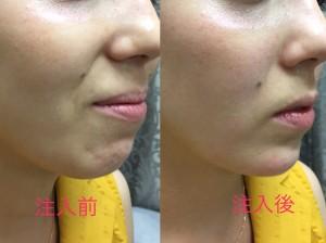 下顎 ヒアルロン酸