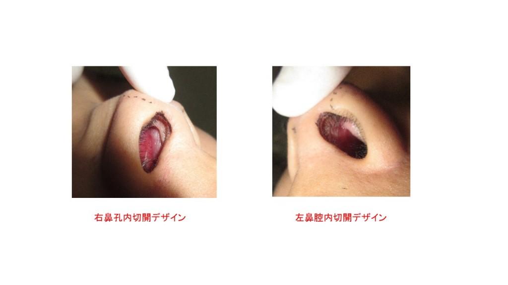 当院最新 鼻尖形成・鼻中隔延長・隆鼻術