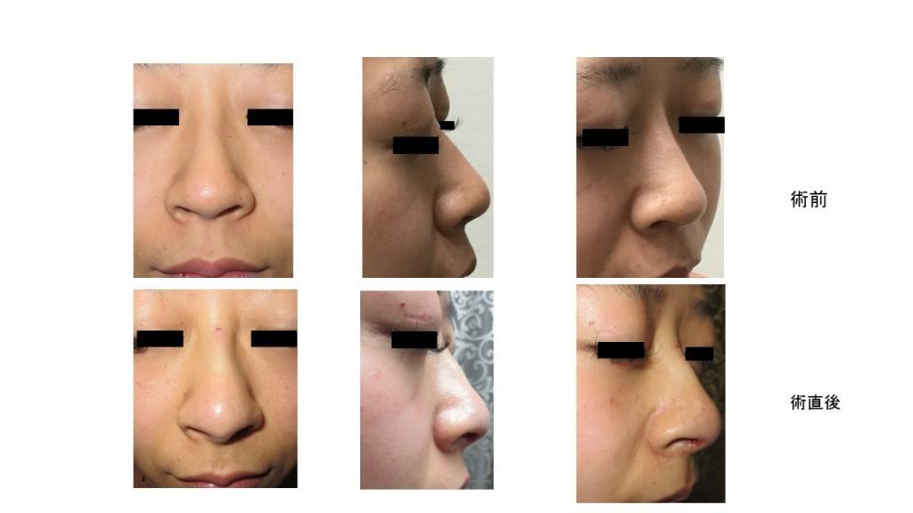 腫れない鼻中隔延長