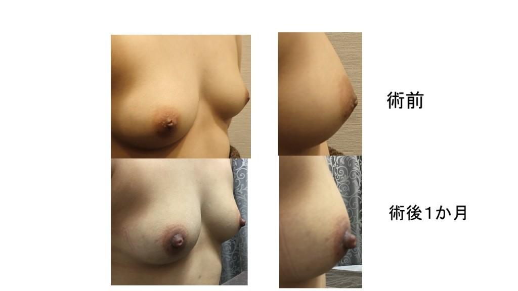 切らない陥没乳頭 術後一カ月の経過