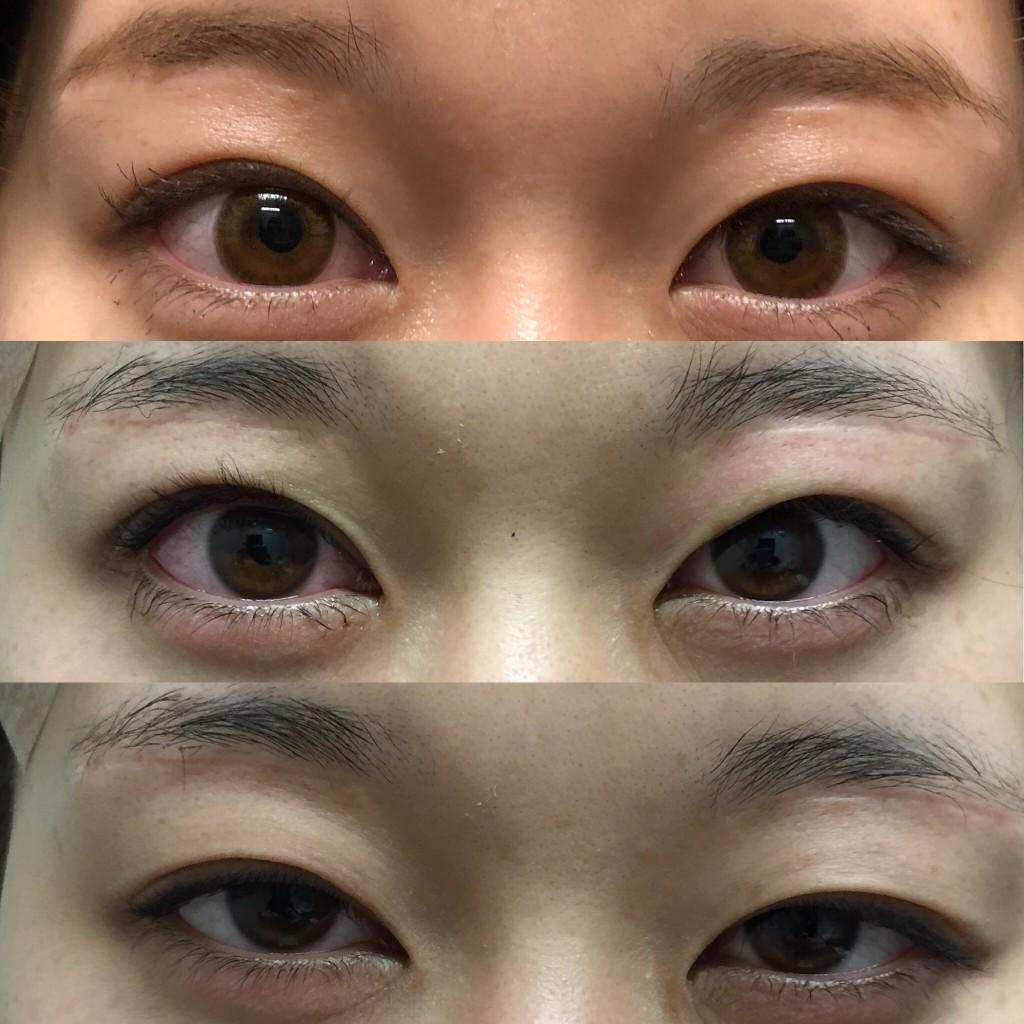 切らない眼瞼下垂症手術(LT法)