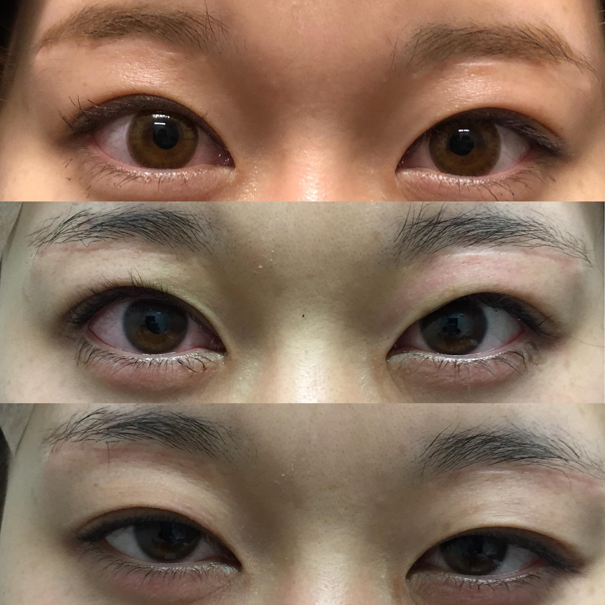 切らない眼瞼下垂症手術(LT法) , 原田崇史ドクターブログ