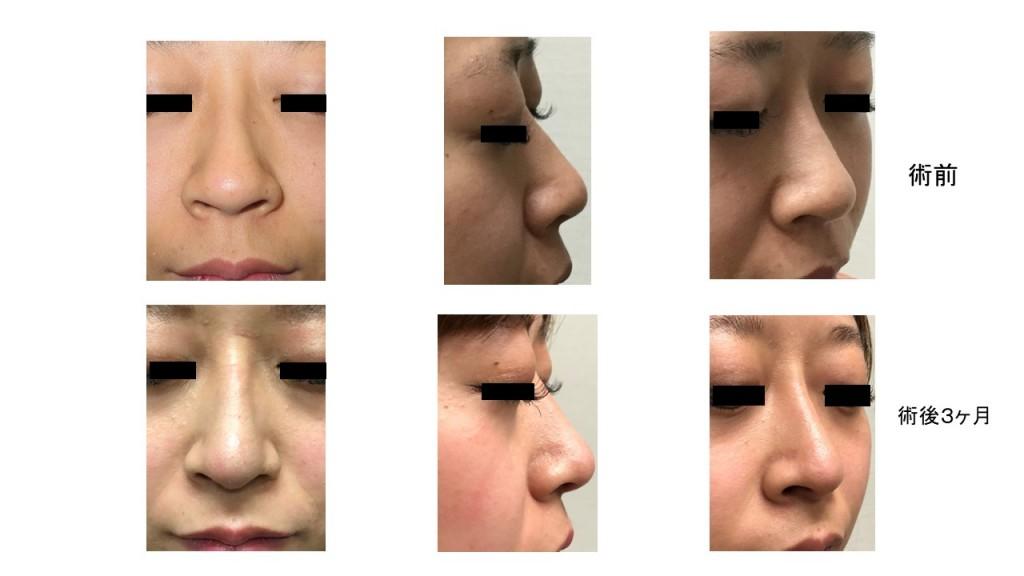 再生医療を用いた鼻中隔延長・隆鼻術 術後3ヶ月の経過