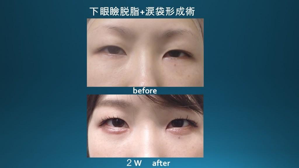 涙袋形成術+下眼瞼脱脂 術後2週間の経過