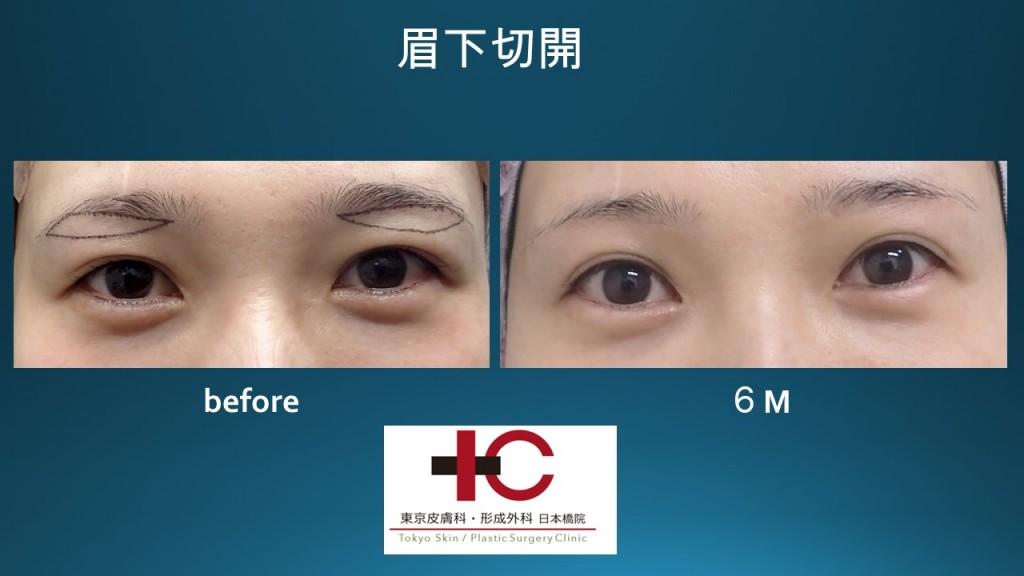 眉下切開 術後6か月の経過