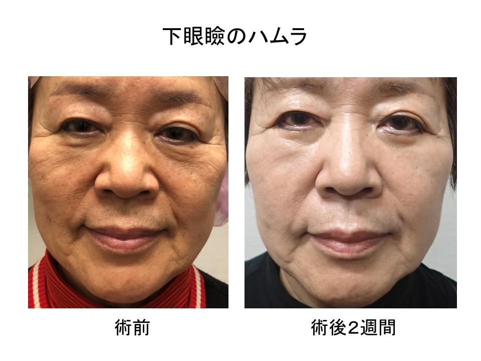 目の下のたるみ取り 術後2週間の経過