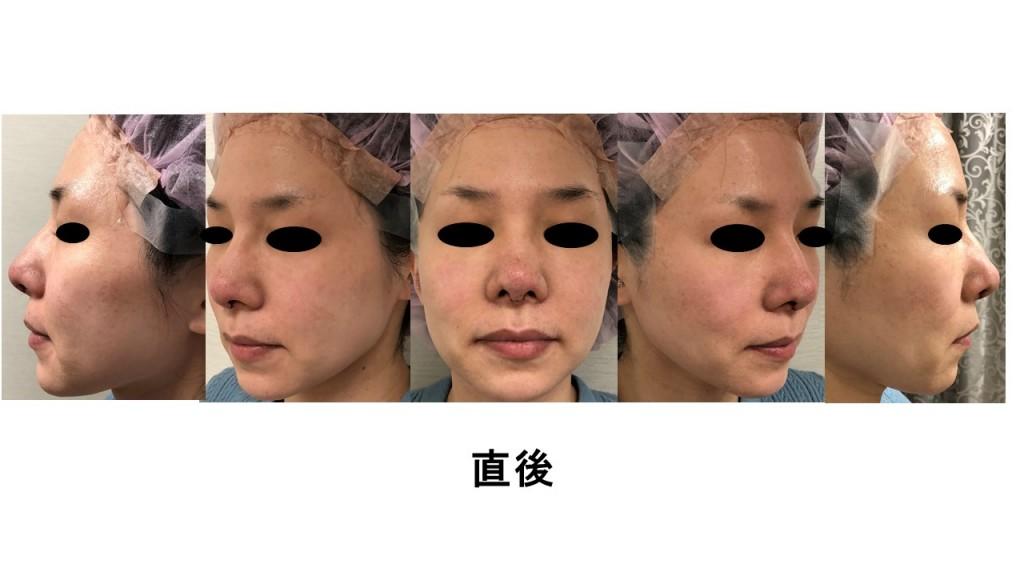 鼻尖形成、鼻尖縮小、団子鼻、耳介軟骨移植