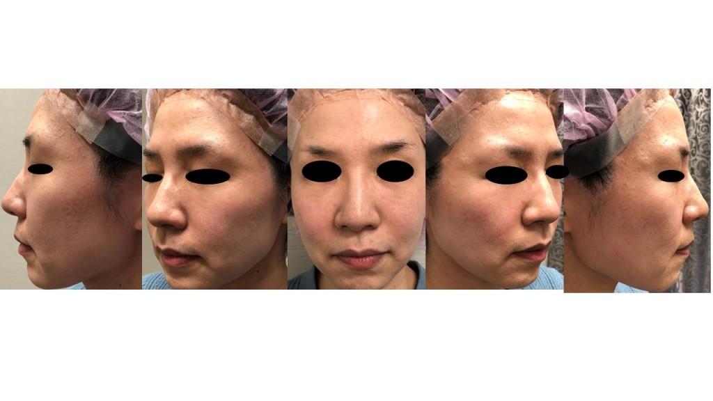 鼻尖縮小術+耳介軟骨移植(アルマジログラフト)