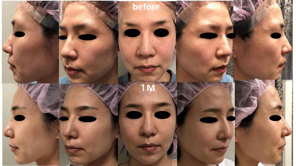 鼻尖縮小術+耳介軟骨移植(アルマジログラフト)術後1か月の経過