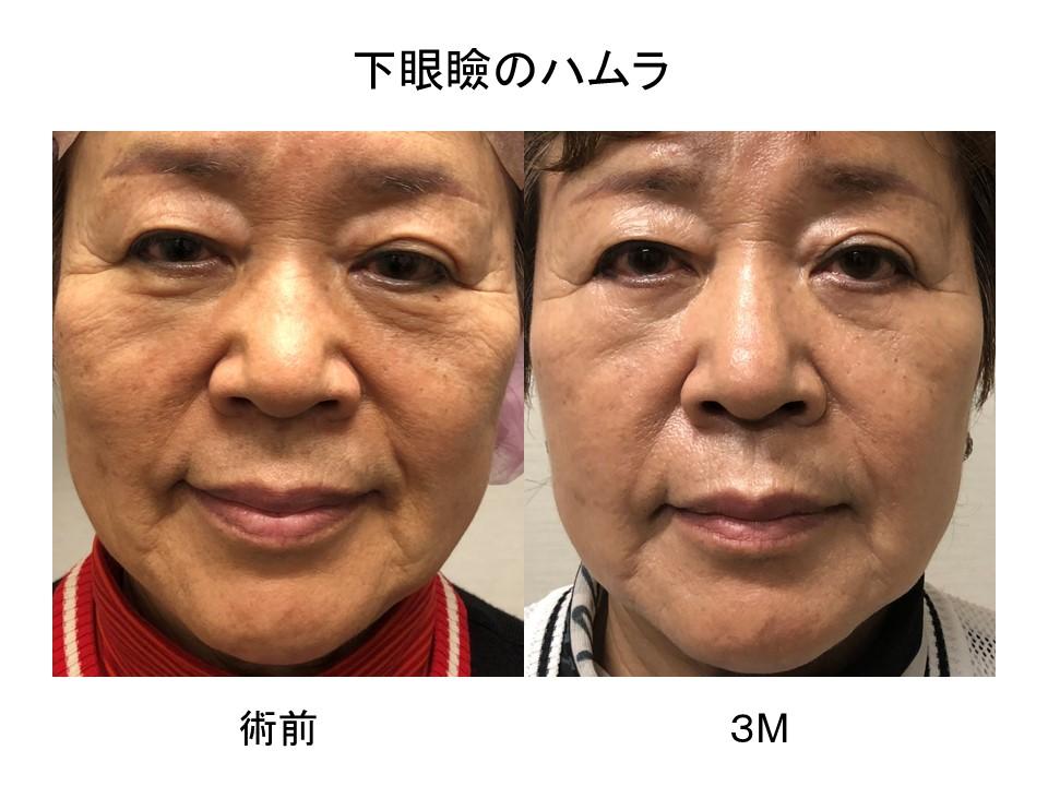 目の下のたるみ取り 術後3ヶ月の経過