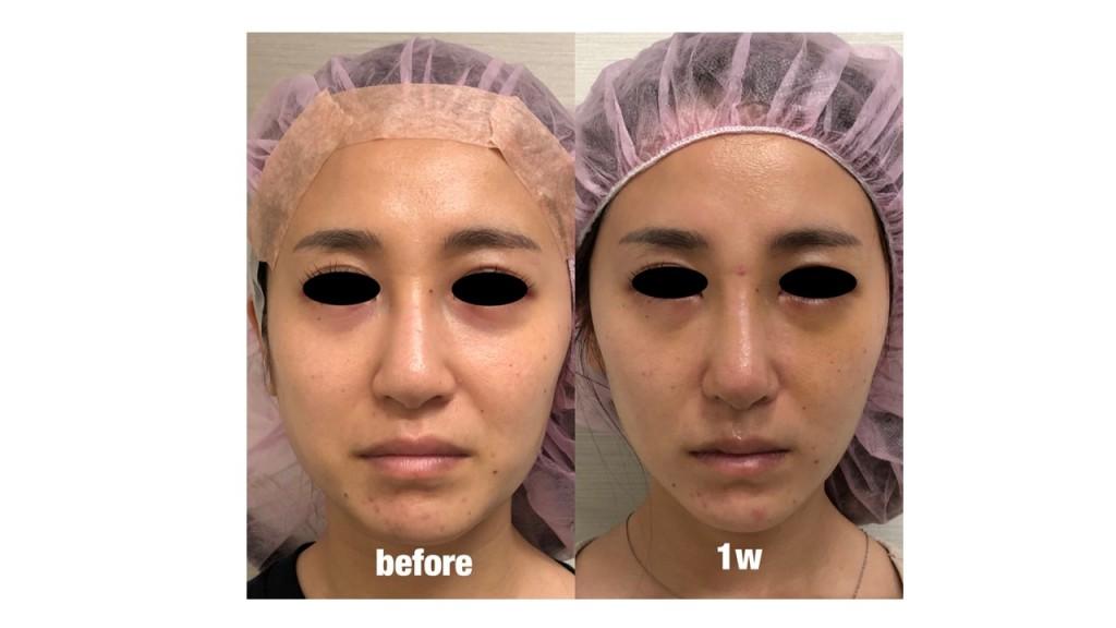 鼻プロテーゼ・鼻尖縮小術・耳介軟骨移植 術後1週間の経過