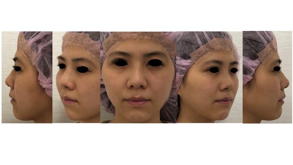 鼻尖縮小術+耳介軟骨移植+I型プロテーゼ 術後1.5ヶ月の経過