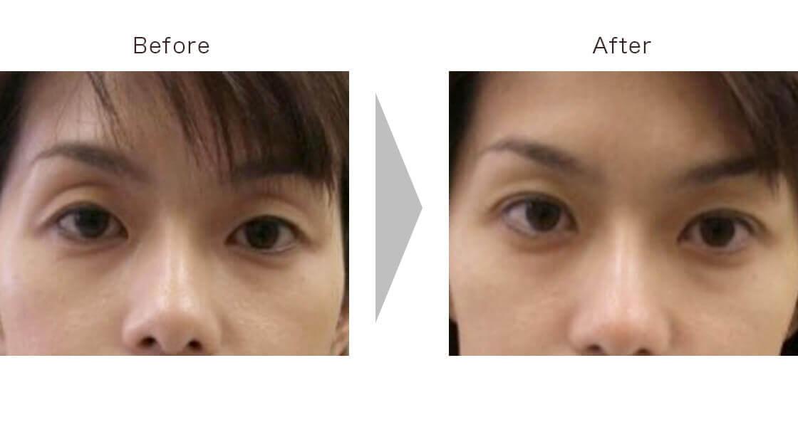 眼瞼下垂(切開なし)