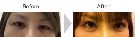切らない眼瞼下垂手術・ヒアルロン酸