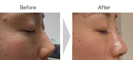 L型筋膜移植・鼻根部修正