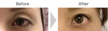 切らない眼瞼下垂(左目のみ実施)②