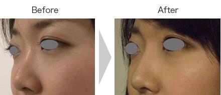 隆鼻ヒアルロン酸
