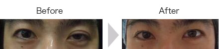 切らない眼瞼下垂(左目のみ実施)①