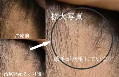 育毛・発毛メソセラピー