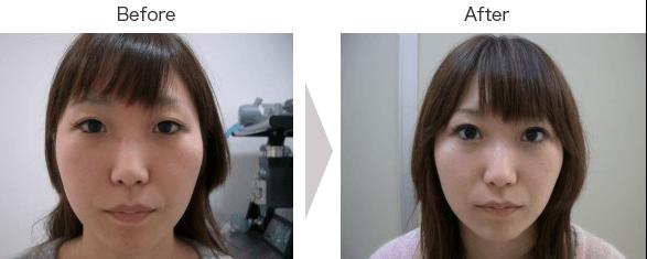 Eye Fold Surgery