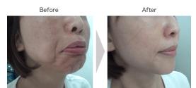 Chin Botox