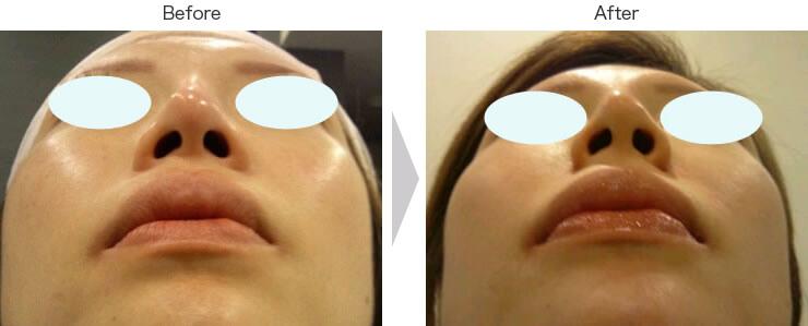 切らない鼻翼縮小術