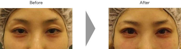 黒目整形(二重まぶた+眼瞼下垂(切開なし))