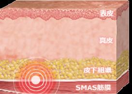 SMAS筋膜に働きかける