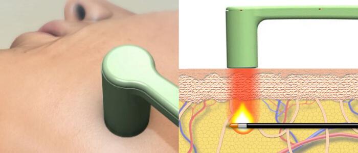 専用のハンドピースで直接皮膚に熱を加えます