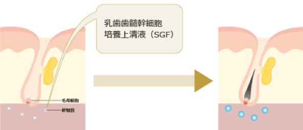 ベビーペプチド注射歯髄(幹細胞培養上清液)によるAGA治療