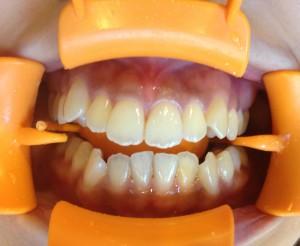 黒ずんだ歯ぐきをきれいなピンクに!
