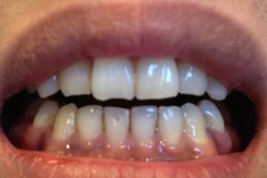 歯のパーフェクトクリーニング!