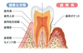 本当は恐〜い歯周病菌!