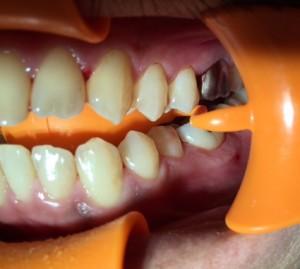 銀歯きらーん