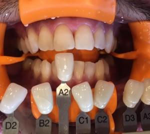 歯の白いは七難隠す?!?