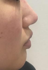 鼻のヒアルロン酸注入☆
