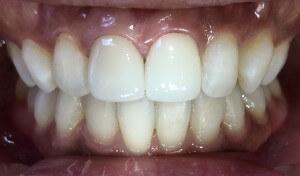前歯の審美歯科治療について