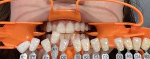 一回で真っ白な歯に!