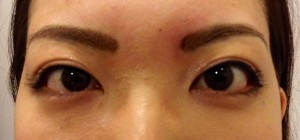 涙袋形成 hyaluronic acid injection for lower eyelid